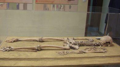 """Photo of #Novelda: """"Una historia de vida"""": la Paleopatología en el Museo Histórico Artístico"""